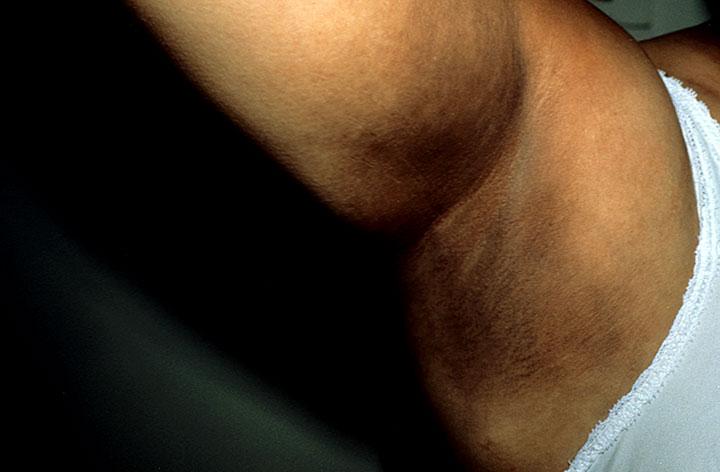 Las manchas claras de pigmento por