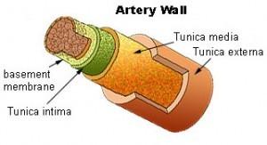 Sobrepeso y ateroesclerosis