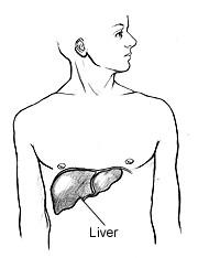 Enfermedades del hígado causadas por la obesidad