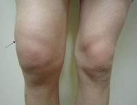 rodillas