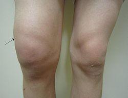 rodillas gordas