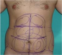 liposuccion abdominal masculina