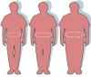 8 tipos de obesidad