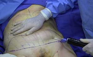 liposuccion
