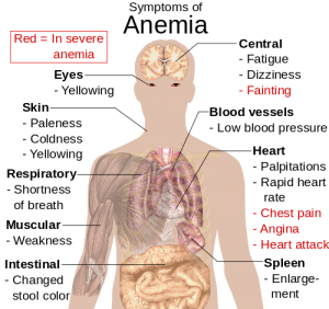 500px-Symptoms_of_anemia.svg