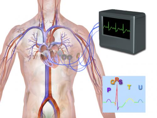 Blausen_0339_Electrocardiogram