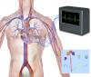 ¿Sabías que la cirugía para adelgazar mejora el ritmo cardíaco?
