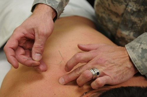 800px-Acupuncture_u.s._military