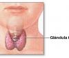 ¿Cuáles son las complicaciones si dejo de tomar la medicación para la tiroides?