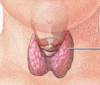 Tirotropina alta: ¿qué es y qué significa?